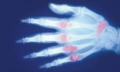 Welt-Rheuma-Tag: Im Kampf gegen Rheuma keine Zeit verlieren