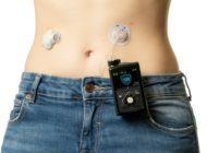 Insulinpumpen-Technik mit Verstand: Moderne Diabetes-Therapie passt sich dem Leben der Patienten an / Das MiniMed[TM] 670G System erleichtert das Diabetesmanagement und erhöht die Zeit im Zielbereich